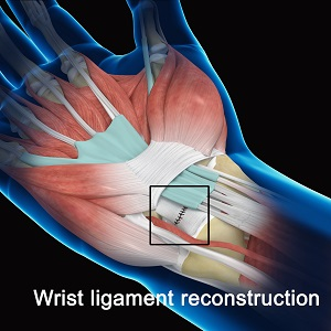 Wrist Ligament Reconstruction